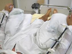 Primer trasplante completo de dos brazos a un hombre en Alemania