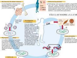 Logran células madre «personalizadas» contra diez enfermedades incurables