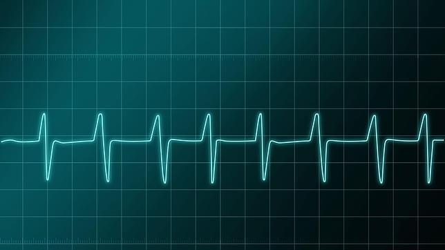 external image electrocardiograma--644x362.jpg