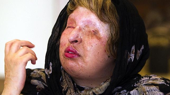 La iraní que quedó ciega tras ser rociada con ácido perdona a su agresor