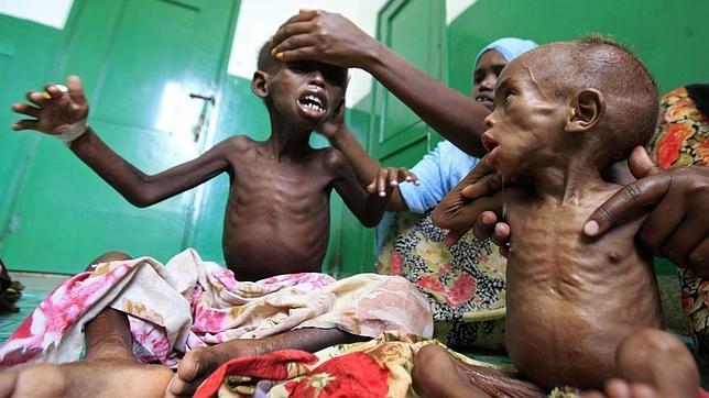 Más de 29.000 niños muertos en Somalia en apenas tres meses
