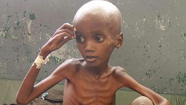 Más de 13 millones de víctimas por hambruna en el Cuerno de África