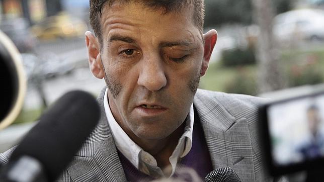 Reconstruyen El Nervio Facial De Padilla Tras 11 Horas De Operacin