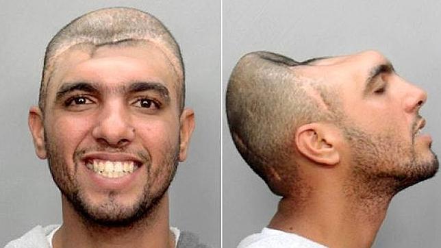 El extraño caso de «El hombre con media cabeza»