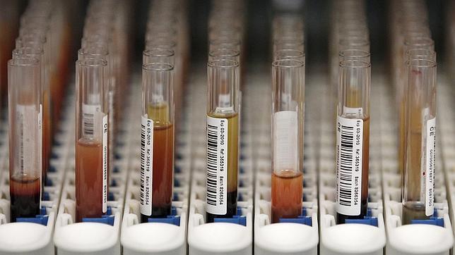 «Se ha llegado a tardar hasta 25 años en diagnosticar una enfermedad rara»