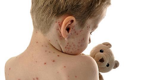 Como saber si es varicela o viruela