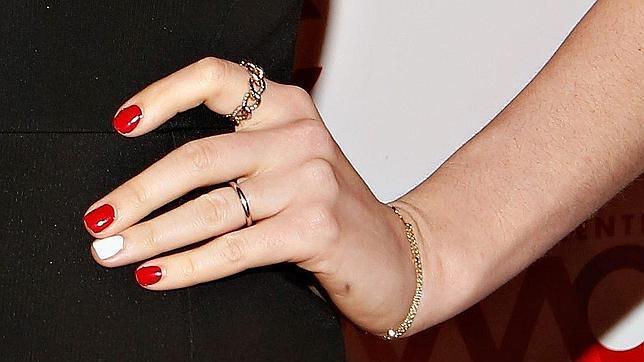 La Uña Rebelde De Anne Hathaway Abces