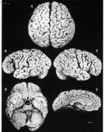El cerebro de Einstein sí era diferente