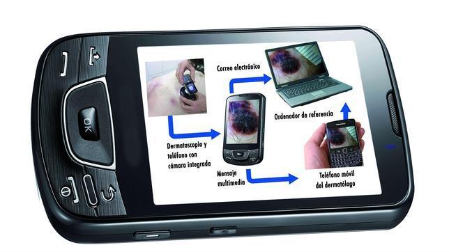 El Ramón y Cajal podrá detectar de forma precoz el cáncer de piel a través del smartphone