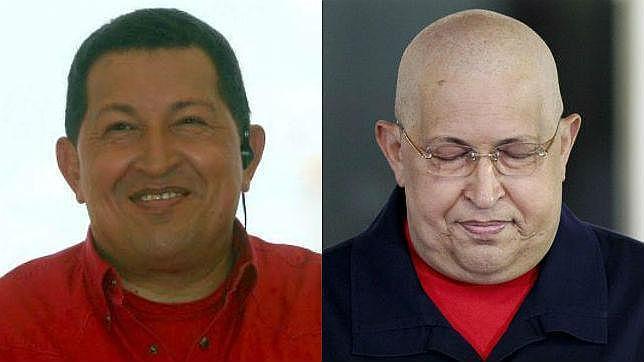 «Una inyección habría sido suficiente para inocular el cáncer a Chávez»