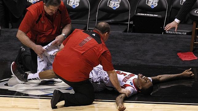 La escalofriante lesión de Kevin Ware