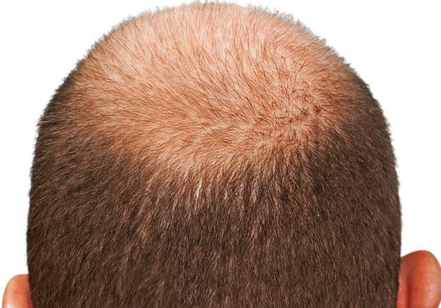 Los medios para los cabellos de los cabellos largos