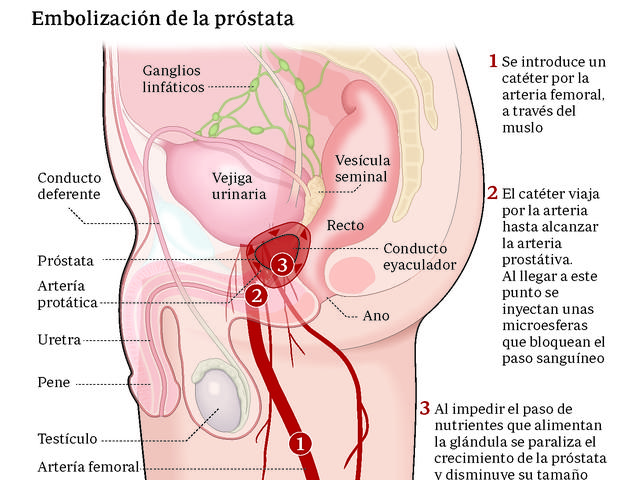 sin próstata