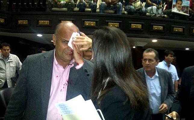 El diputado opositor William Dávila fue brutalmente agredido