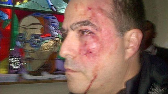 Diputados opositores vuelven a ser agredidos en Parlamento venezolano