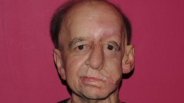 Un británico recupera su rostro gracias a una impresora 3D