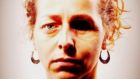 La mujer que perdió un ojo el 14-N difunde su foto: «Así es como ha quedado mi rostro»