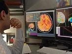 Diagnostican el Alzheimer con ayuda de la tecnología espacial