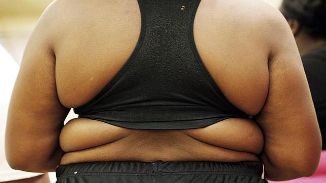El glucagón consigue suprimir la sensación de hambre en personas con diabetes de tipo 1, pero no en las que padecen obesidad