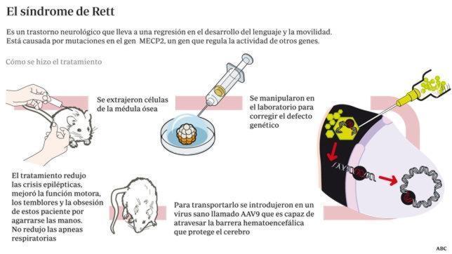 Una terapia génica corrige los síntomas del síndrome de Rett