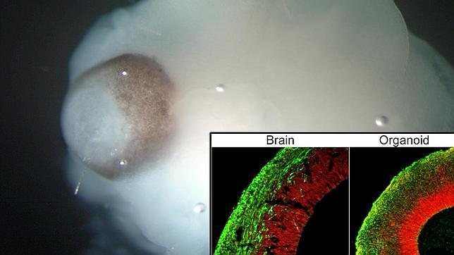Imagen del minicerebro en el que se observa la retina en desarrollo (marron). A la derecha la asombrosa similitud entre la corteza cerebral y el orgainode.