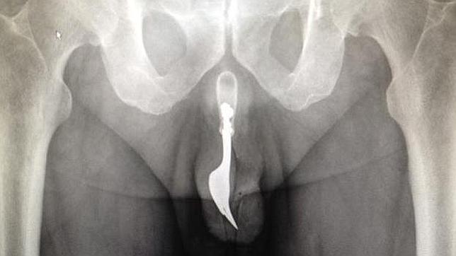 Extraen del pene de un hombre un tenedor de diez centímetros