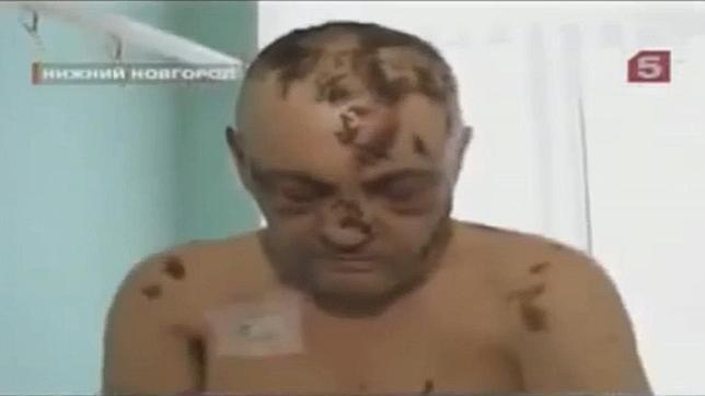 La «heroína caníbal», la nueva droga que pudre la piel, amenaza con extenderse a Europa Occidental
