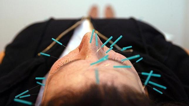 La acupuntura ha demostrado sus beneficios en el tratamiento de los sofocos provocados por la quimioterapia en cáncer de mama