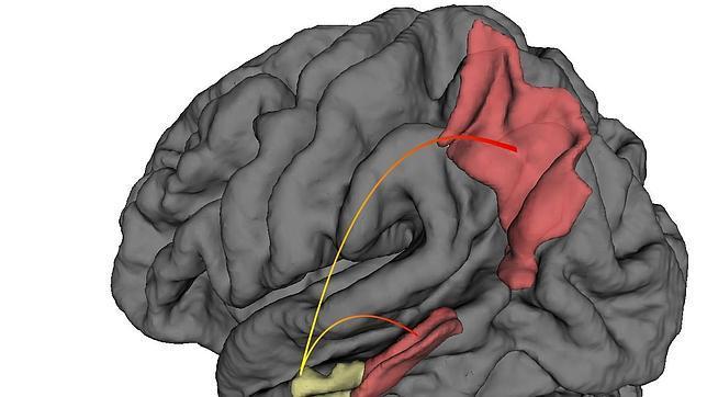 Descubren dónde, porqué y cómo se propaga el alzhéimer