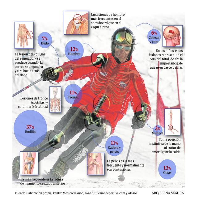 dolor de rodilla en la ingle después de fracturas
