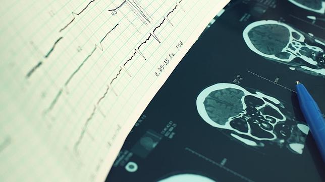 Un toxina puede ser la causa de la esclerosis múltiple