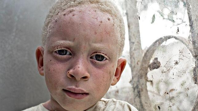 Los africanos albinos, una condena grabada en la piel