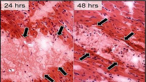 El gel que repara el corazón tras un infarto