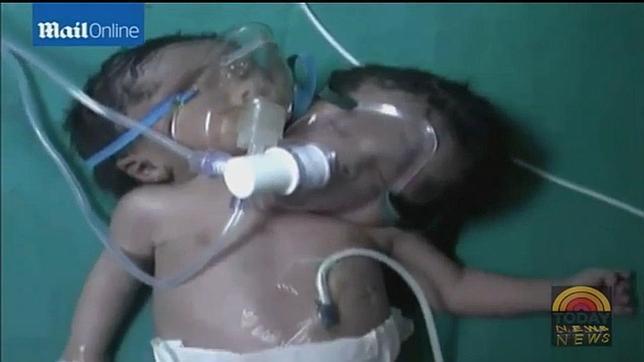 Nace un bebé de dos cabezas en la India
