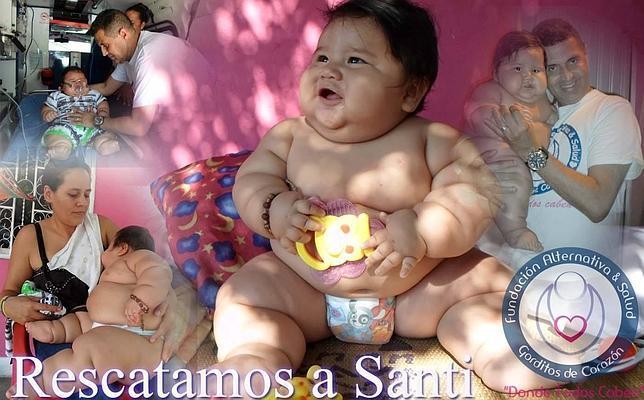 El bebé más obeso de Colombia pesa 20 kilos con tan solo ocho meses