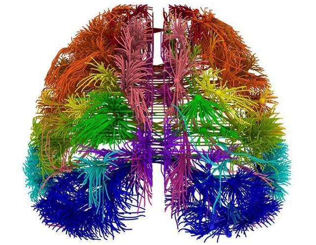 Primer mapa del cerebro humano en desarrrollo