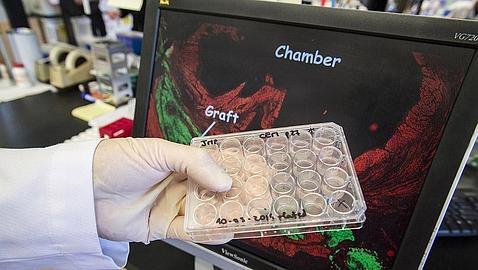 La terapia celular regenera por vez primera corazones infartados en primates