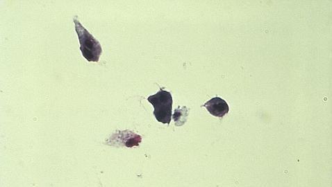 infección de próstata curados