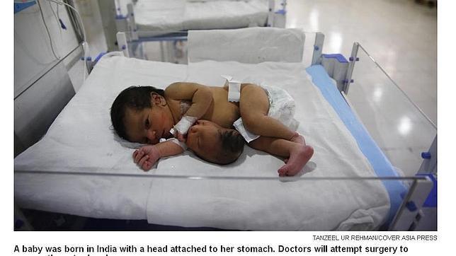Nace un bebé en la India con una segunda cabeza unida a su estómago