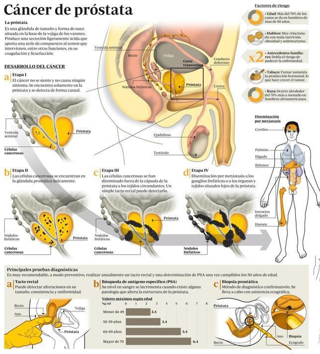 Todo lo que debe saber sobre el cáncer de próstata