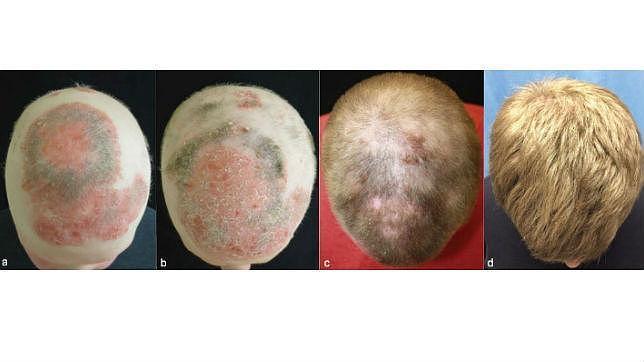 Crecimiento del pelo en la cabeza del paciente gracias al citrato de tofacitinib