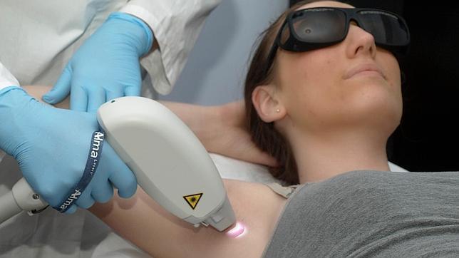 Un nuevo método prevé si se sufrirán quemaduras con la fotodepilación