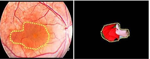 La combinación de células iPS y terapia génica podría curar la retinosis pigmentaria