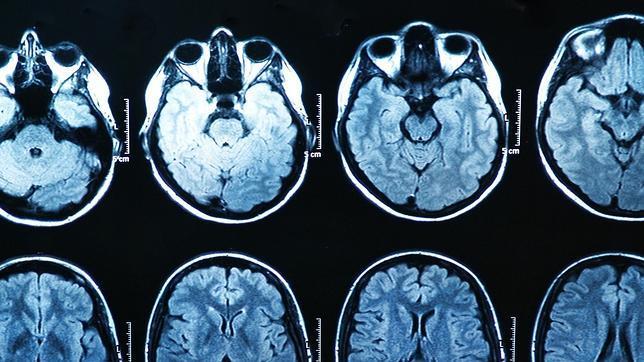 ¿Ver porno encoge el cerebro?