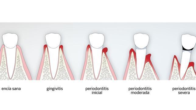 ¿Cuáles son las enfermedades del periodonto?