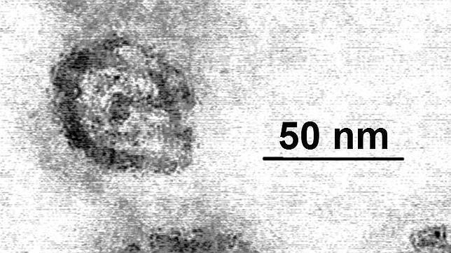 Los diez virus más letales de la Historia