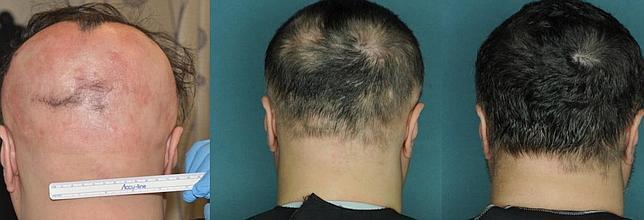 De izquierda a derecha, uno de los pacientes al inicio del tratamiento aparece sin apenas cabello. Tres meses después ya era visible el nacimiento del nuevo pelo y a los cuatro meses, la cabeza aparece completamente repoblada
