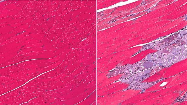 Esta imagen representa tejido muscular normal (izquierda) y tejido con distrofia muscular (derecha)