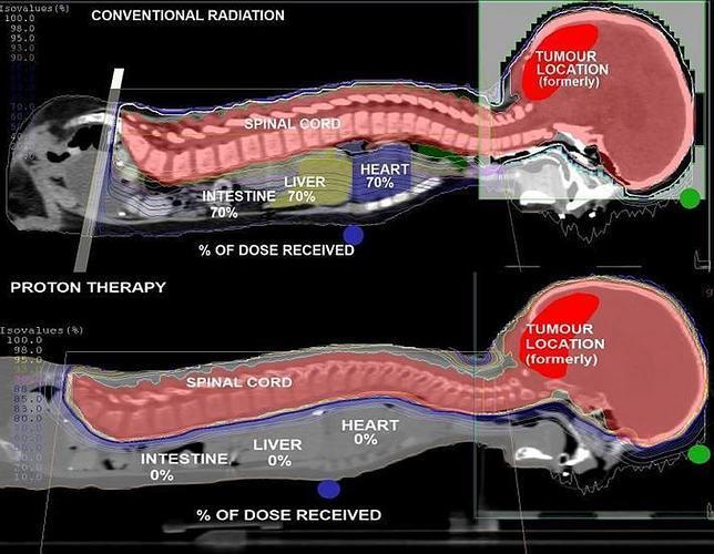Imágenes en las que se compara el porcentaje de dosis de radiación que recibe una persona en una terapia convencional y en una de protones