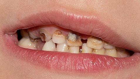 Consejos para cuidar los dientes y encías de los más pequeños d3bba32b3f88